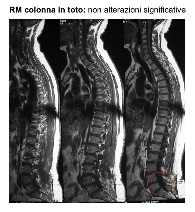 Lombalgia cronica e microinstabilità vertebrale