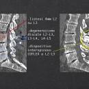 TAC preoperatoria che mostra la listesi ed il dispositivo interspinoso, che in questo caso non è in grado di risolvere la patologia