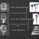 Immagini del sistema di stabilizzazione lombare semirigido di tipo dynesis, impiegato in questo caso i