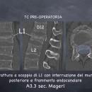 Frattura a scoppio di L1 con frammento nel canale spinale. Frattura A3.3 secondo la classificazione di Magerl.