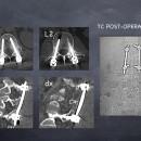 TAC, controllo radiologico finale che mostra le viti e le barre di connessione, la frattura a questo punto è stabile