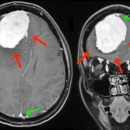 Figura 1: Risonanza Magnetica sequenza T1 con contrasto mostra voluminosa neoformazione del lobo frontale destro (frecce rosse)  in prossimità del seno sagittale superiore (frecce verdi)