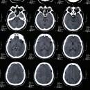 Figura 3: Controllo Risonanza Magnetica a 6 mesi dall'intervento