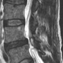 Risonanza Magnetica sequenza T2 taglio sagittale mostra una stenosi L4-L5 causata dalla cisti sinoviale