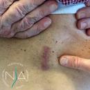 Figura 2: ferita chirurgica a seguito di intervento di stabilizzazione lombare circonferenziale mininvasiva