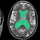 Figura 1: Sequenze T2 di Risonanza Magnetica che mostrano quadro di idrocefalo tetraventricolare, ventricoli cerebrali evidenziati in verde, compatibile con la diagnosi di idrocefalo normoteso in un paziente di oltre 65 anni.